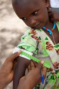 checking a child for malnutrion